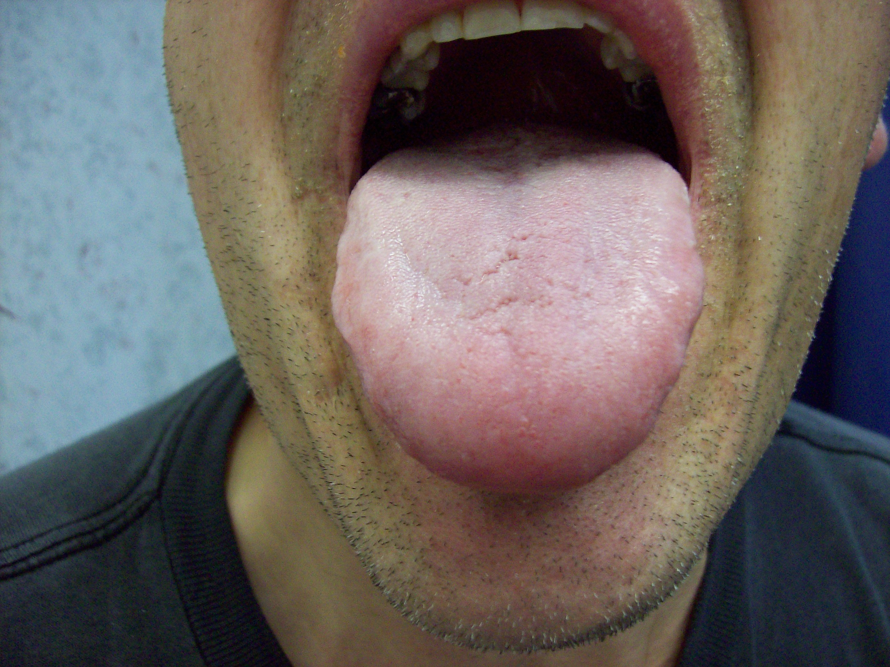 Normal Tongue - Bing images