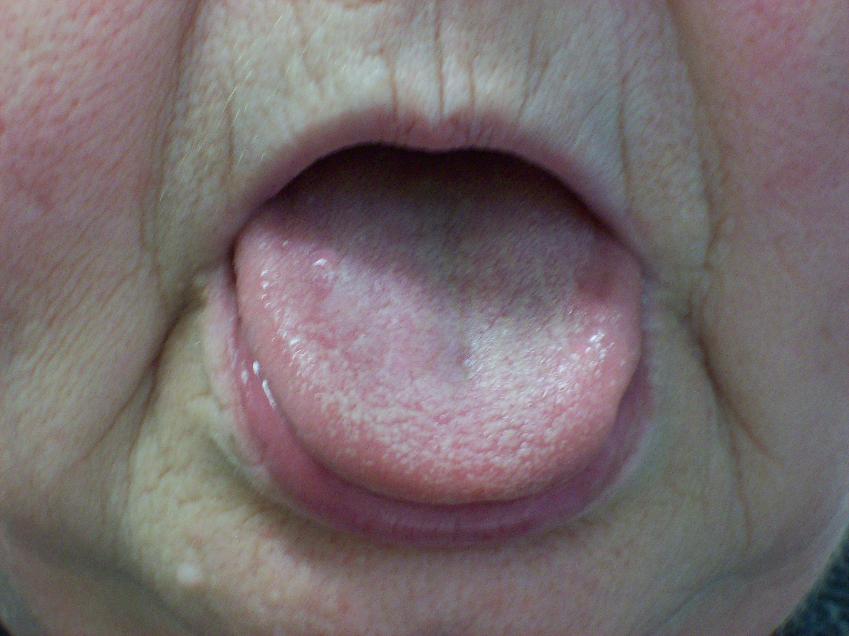 Look at your tongue, check your health